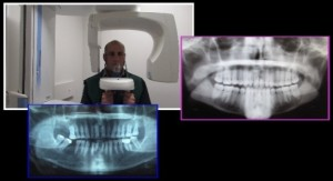 X-ray_OPG