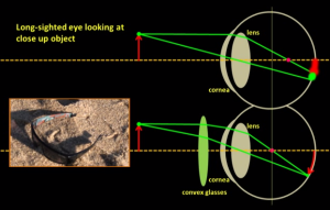correcting_long_sightedness_with_convex_lens