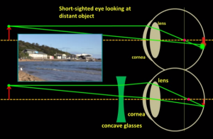 correcting_short_sightedness_with_concave_lens