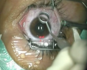 laser_eye_surgery_courtesy_Philos2000